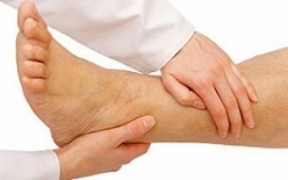 эндартериит сосудов нижних конечностей симптомы и лечение